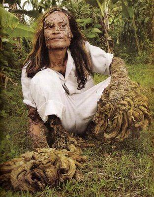 tree man01