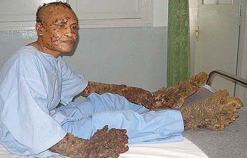 tree man07