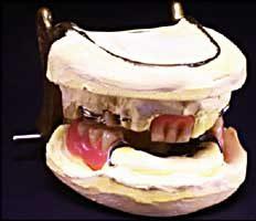 ty cobb teeth